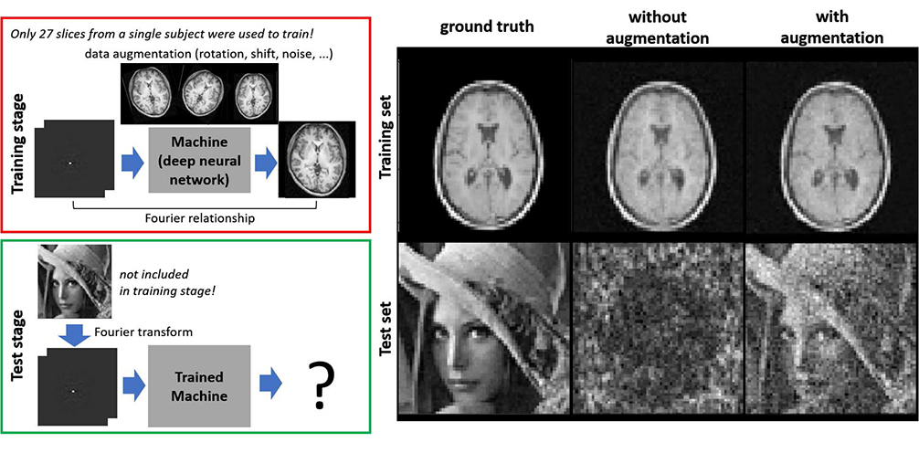 Deep Learning in MR Image Processing